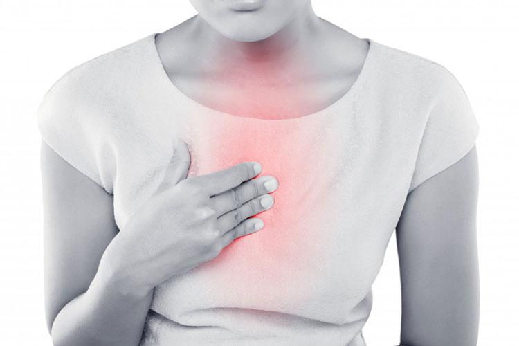 reflux acids01