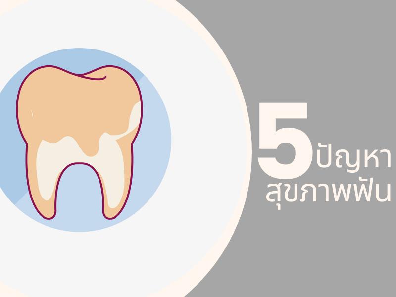 5 ปัญหาสุขภาพฟันที่วัยทำงานต้องใส่ใจ 02