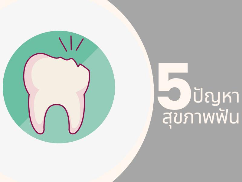5 ปัญหาสุขภาพฟันที่วัยทำงานต้องใส่ใจ 03