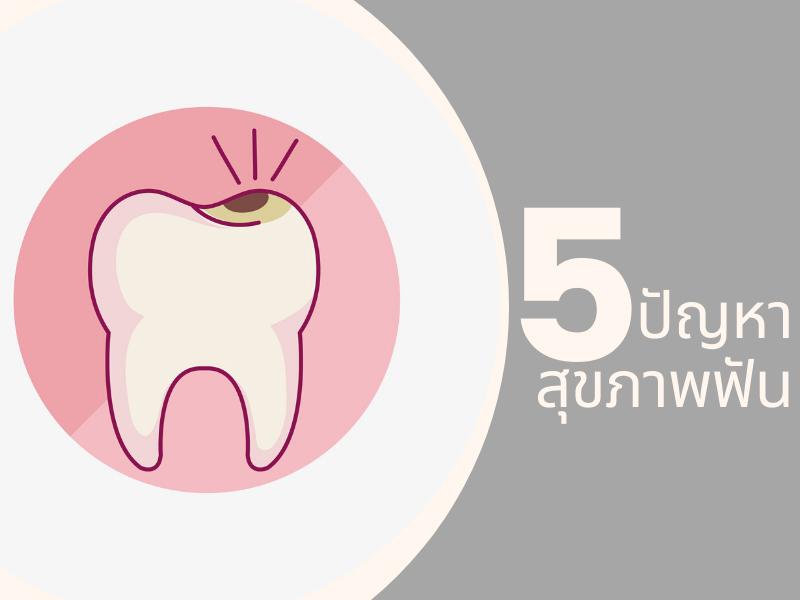 5 ปัญหาสุขภาพฟันที่วัยทำงานต้องใส่ใจ 04