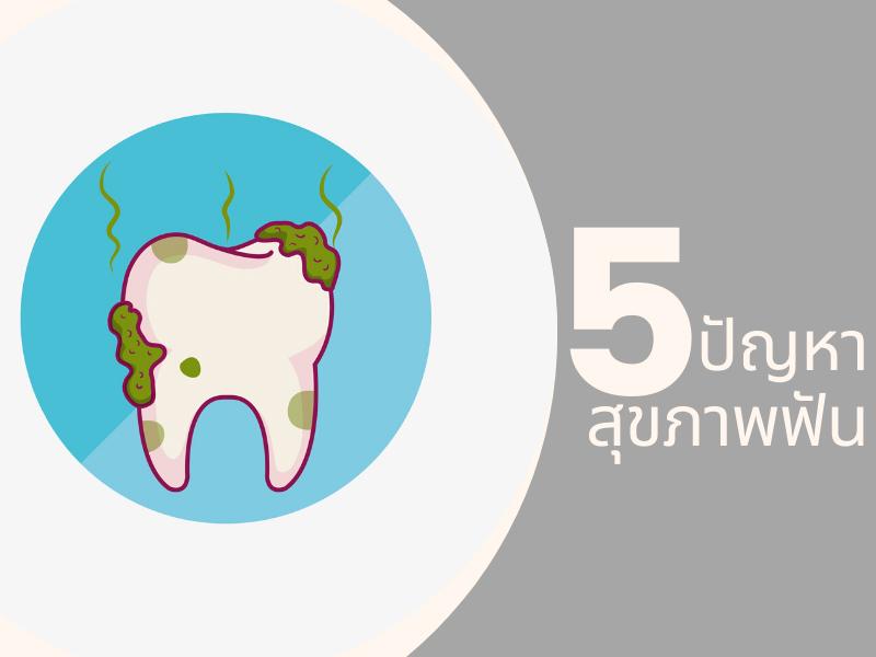 5 ปัญหาสุขภาพฟันที่วัยทำงานต้องใส่ใจ 05