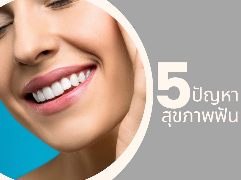 5 ปัญหาสุขภาพฟันที่วัยทำงานต้องใส่ใจ