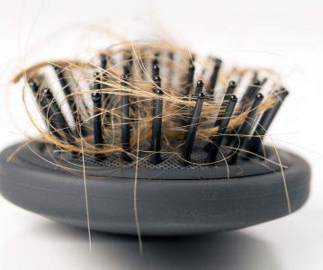 Hair Loss 3